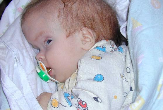 Гидроцефалия у новорожденного