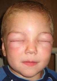 Аллергический отек лица у ребенка