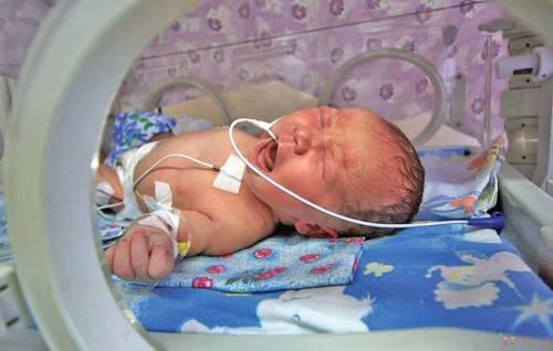 Кювез для новорожденного ребенка