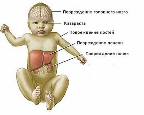 Органы ребенка, которые страдают при галактоземии