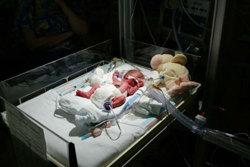 Открытый кювез для новорожденного