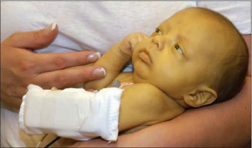 Младенец с патологической желтухой
