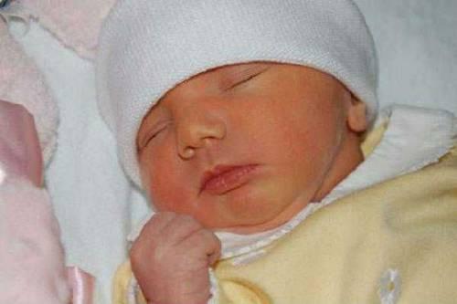 Физиологическая желтушка у малыша