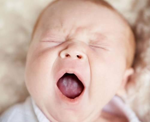 Кандидоз ротовой полости у младенца