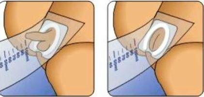 Мочесборник для новорожденных девочек
