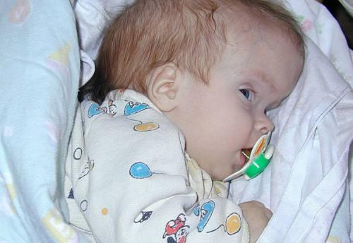 Обхват головы у новорожденного
