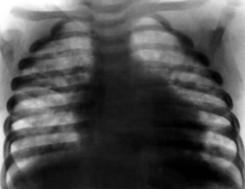 Рентгенограмма грудного ребенка