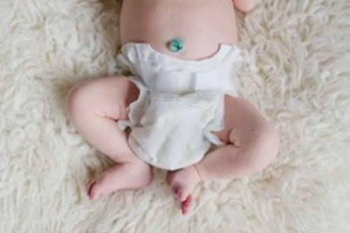 Пупочная ранка у новорожденных