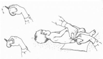 Постановка клизмы новорожденному