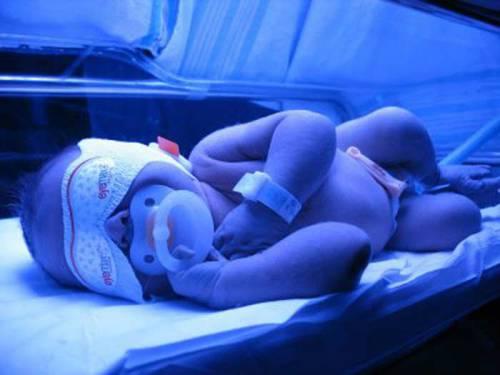 Фототерапия желтухи у новорожденного