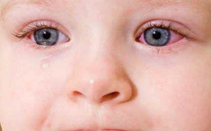 Покраснение глаз у младенца