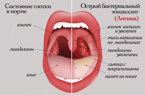Признаки заболеваний горла