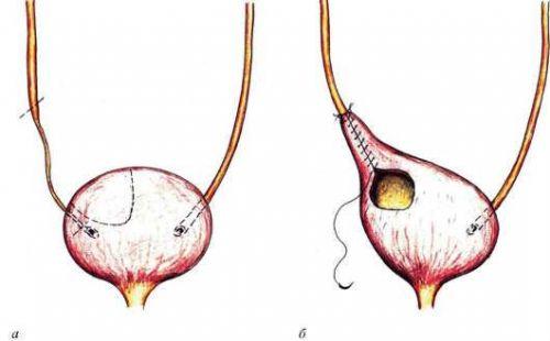 Уретероцистоанастомоз