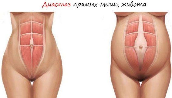 Диастаз мышц живота