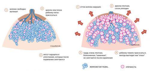 Признаки каменной груди