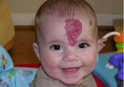 Родимое пятно у младенца