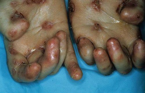 Врожденный эпидермолиз