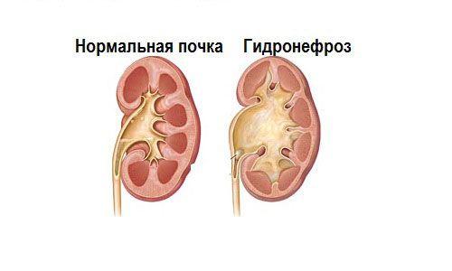 Нормальная почка и гидронефроз