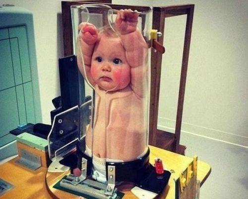 Проведение рентгенографии грудному ребенку