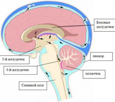 Желудочки головного мозга