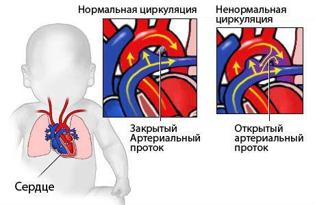 Незаращение артериального протока