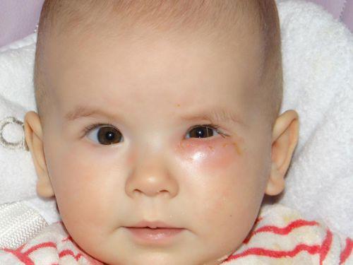 Глаз малыша после зондирования