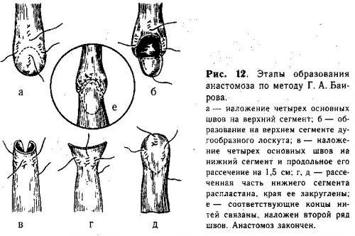 Наложение анастомоза по методу Баирова