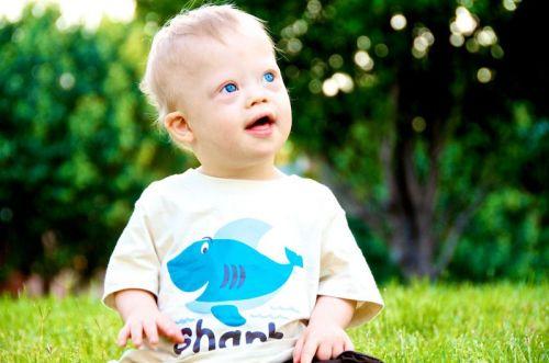 Младенец с синдромом Дауна