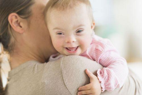 Ребенок с синдромом Дауна с мамой