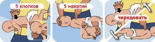 Порядок извлечения инородного тела из дыхательных путей