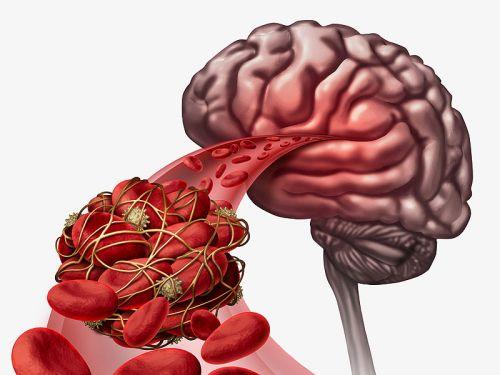 Кровоизлияние из боковых желудочков мозга