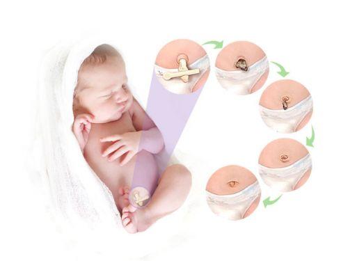 Заживление пупка у младенца