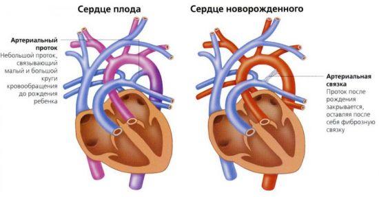 Сердце плода и сердце новорожденного