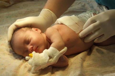 Лечение младенца
