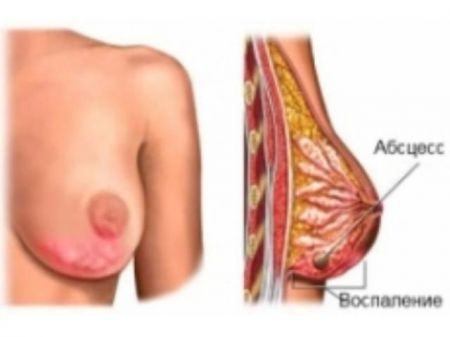 Абсцесс в груди