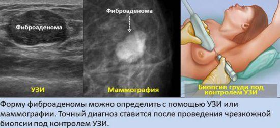 Виды обследования груди