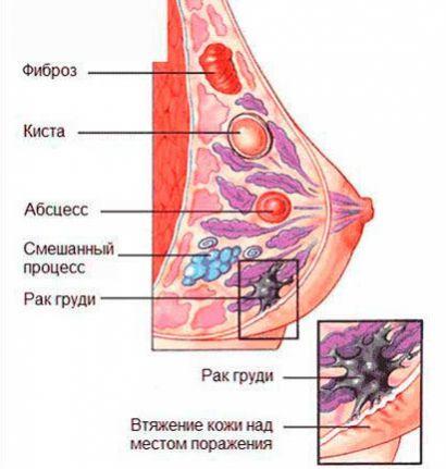 Злокачественная опухоль груди