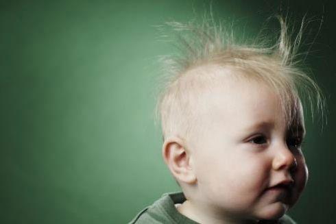 Ребенок с редкими волосами