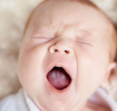 Мозоль на верхней губе у новорожденного