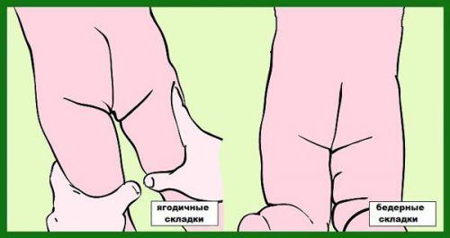 Несимметричные складки на ногах у грудничка