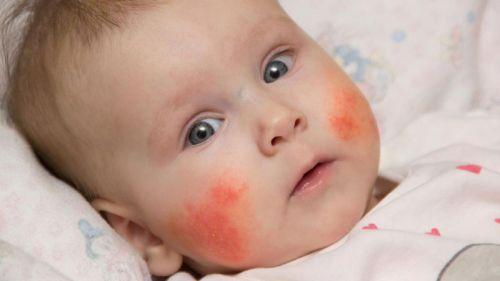Аллергия у младенца