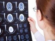 Врач рассматривает снимки МРТ головного мозга