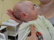 Водянка головного мозга у младенца