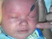 Зондирование глаза новорожденному