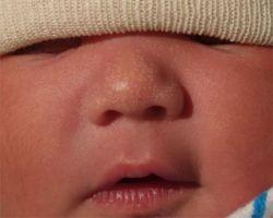 Белые точки на носу у младенца