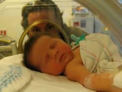 Новорожденный ребенок лежит в кювезе