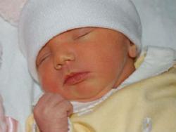 Младенец с желтухой