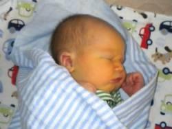 Новорожденый ребенок с желтухой