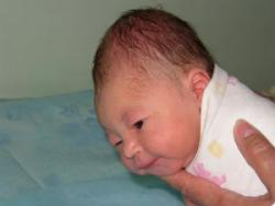 Новорожденный с кефалогематомой