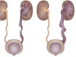 Расширение мочеточника у новорожденных 12